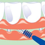 Interdentelbürsten für Zahnimplantat