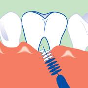 Interdentalbürsten bei Parodontitis und Zahnfleischschwund